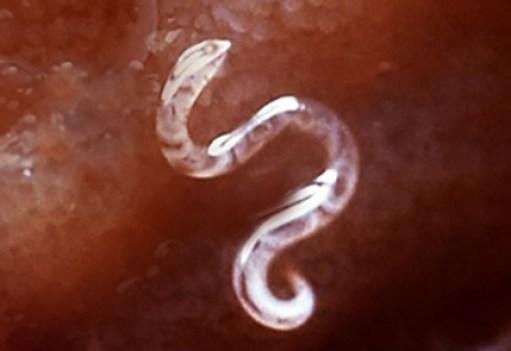 Pin worm parasite