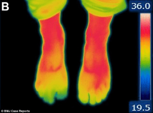 botox applied to the toes restores heat to feet the raynaud s