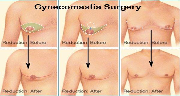 Gynecomastia Surgery cost