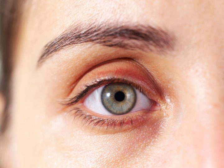 Soft Yellow Spots On Eyelids