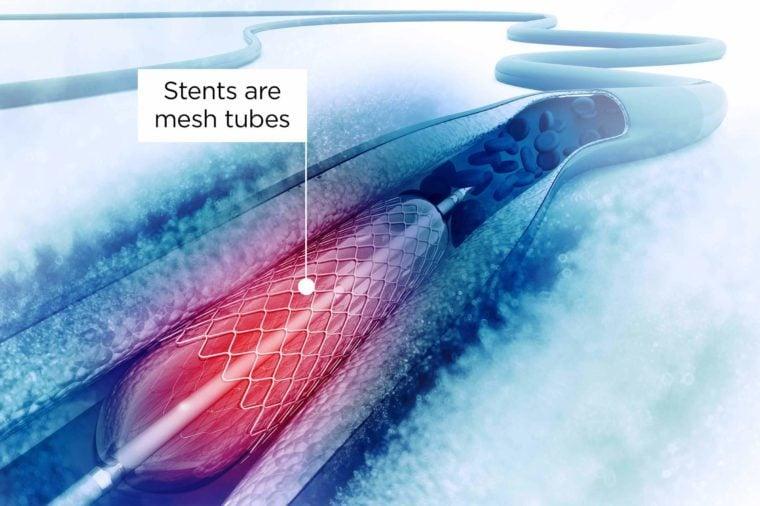 heart-stent