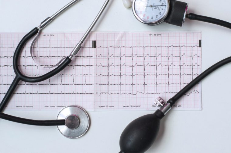 Cardiogram With Stethoscope, Blood Pressure Check Up, Medical Concept