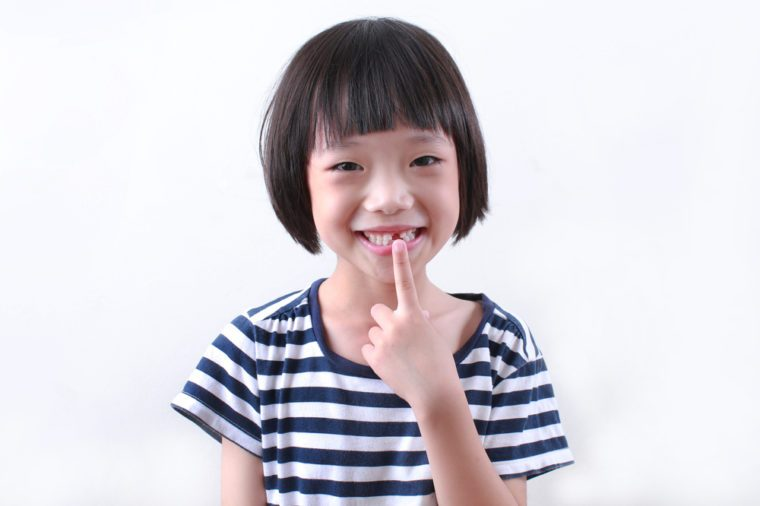 Cute asian girl missing front tooth pointing at it with her finger