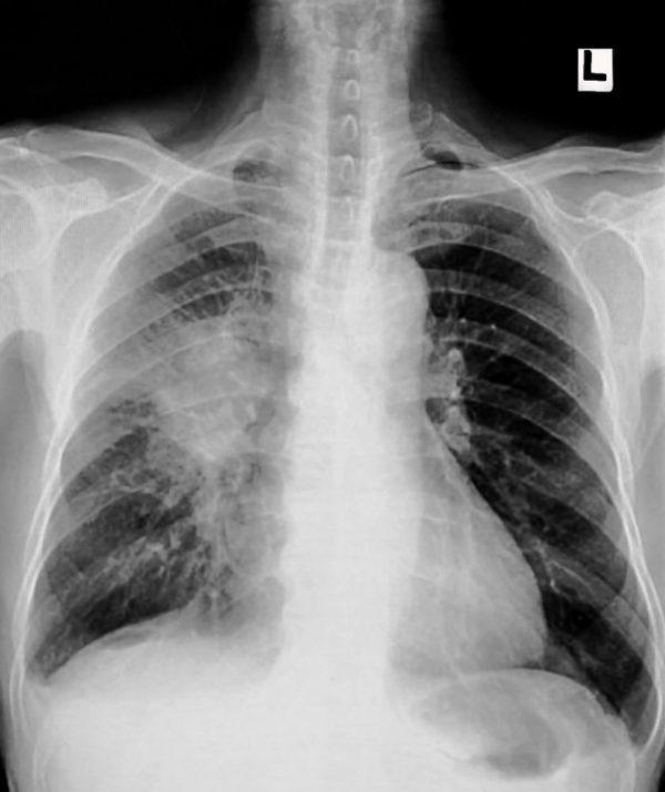 Lung cancer, pleural effusion