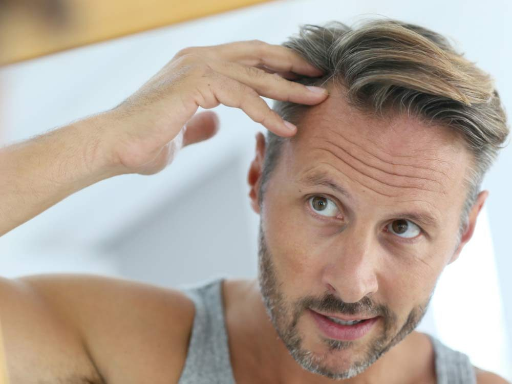 10 Ways To Prevent Hair Loss In Men Readers Digest