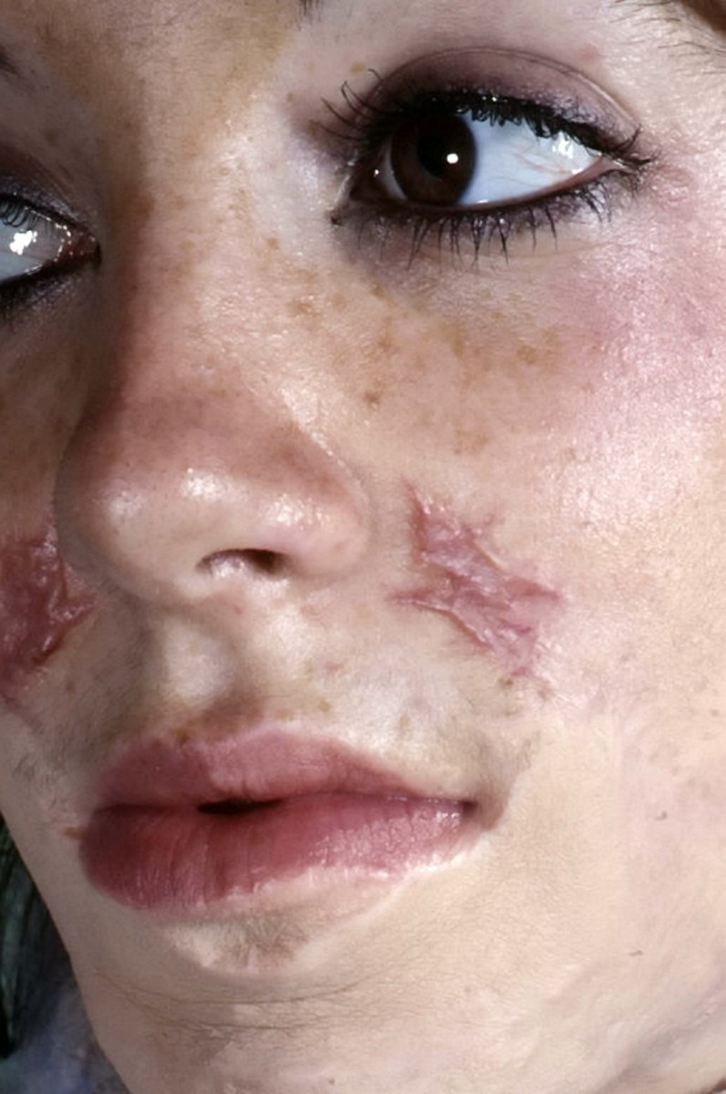 Graphic This Courageous Mum Turned Into A Human Fireball