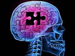 representation of a brain inside a skull
