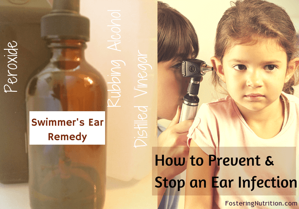 How to Prevent & Stop an Ear Infection