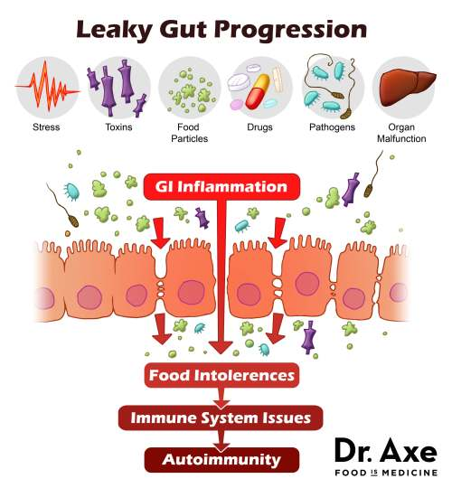 Progression of Leaky Gut | Used with permission of Dr. Axe | Real Food with Dana