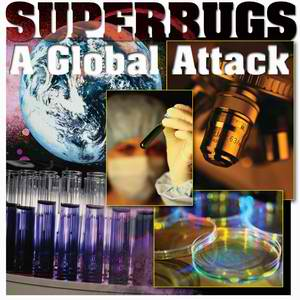 Superbug: Antibiotic resistance will be 'catastrophe'