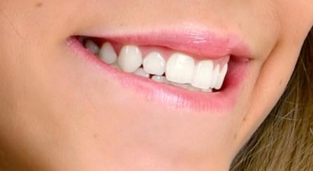 Triphala periodontal disease