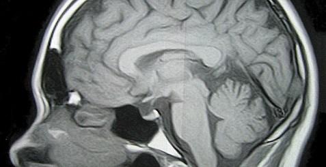 reversing brain shrinkage