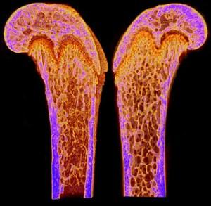 osteoporosis and calcium
