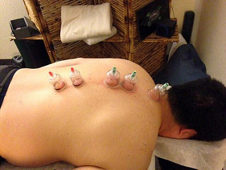cupping decreases pain and fibromyalgia