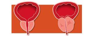 Anti-androgen prostate cancer treatment boosts dementia risk
