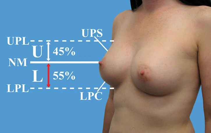 Upper Pole to Lower Pole Ratio