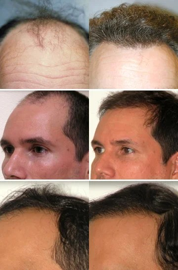 NeoGraft Results