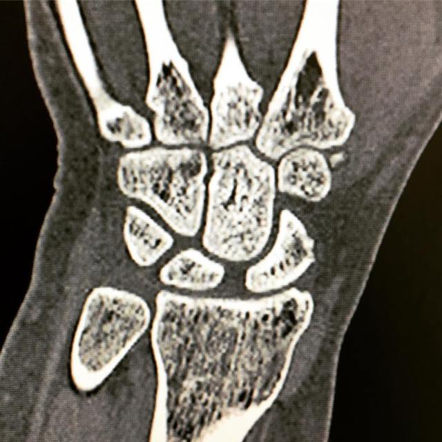 Ct Scan scaphoid