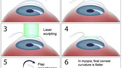 Photo of How the Lasik Eye Surgery Process Works
