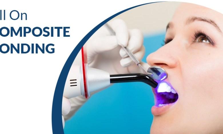 All on Composite Bonding - Dental Clinic London