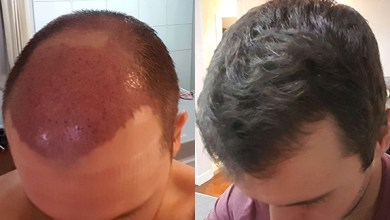 Photo of An overview of Hair transplant cost in Dubai