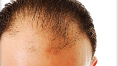 Photo of Is there any scope of Rogaine for hair loss control in 2021, and what are other options?