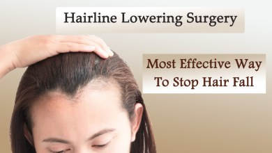 Photo of Hairline Lowering-Most Effective Way to Stop Hair Fall