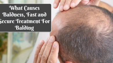 Photo of What Causes Baldness, Fast and Secure Treatment For Balding
