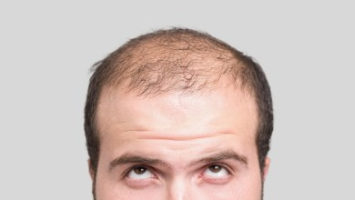Photo of Causes of losing Body Hair in Men and Women