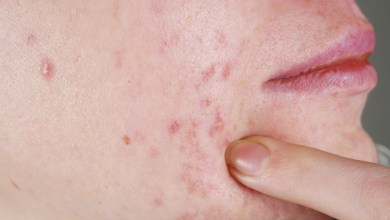 Photo of Anti-Androgen for Acne in Adult Women