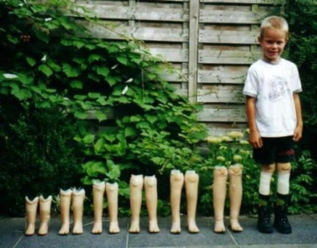 foto prótesis de niño conforme parsa el clima
