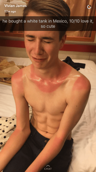snapchat de muchacho llorando por quemadura solar