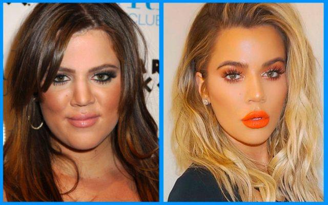 khloe kardashian antes y después de la cirugía