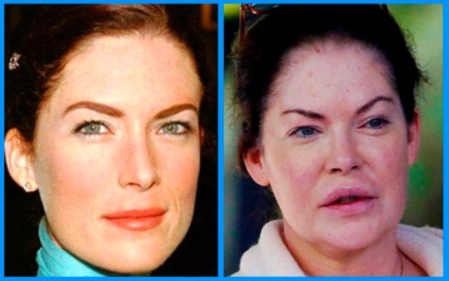 lara flynn boyle antes y después de la cirugía