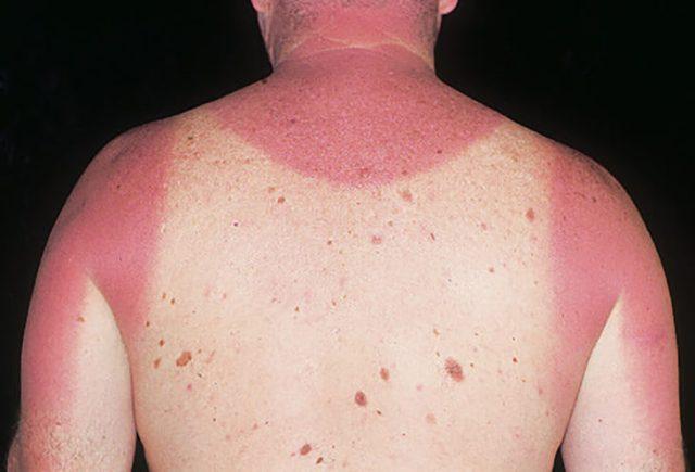 espalda de muchacho con lunares quemada por el sol