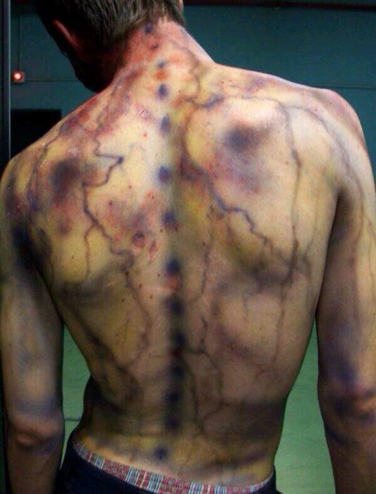 espalda con marcas por quemaduras debido a un rayo