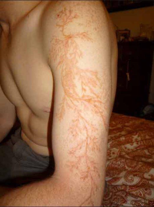 marca de rayo que semeja tatuaje