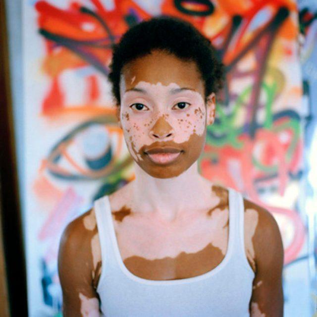 Mujer preciosa vitiligo