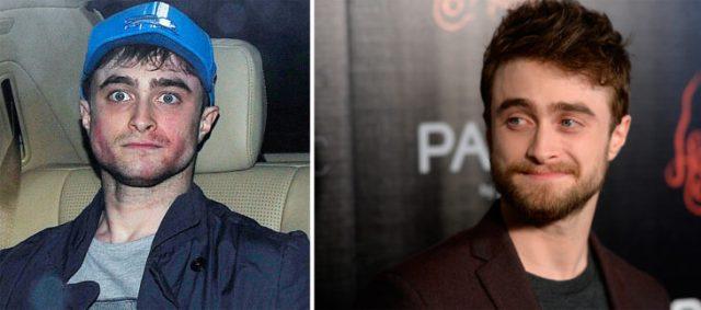 Daniel antes y ahora