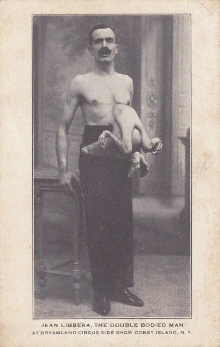 El hombre con 2 cuerpos