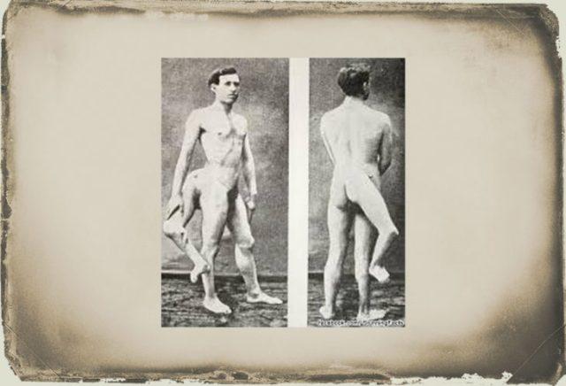 El hombre con 3 piernas