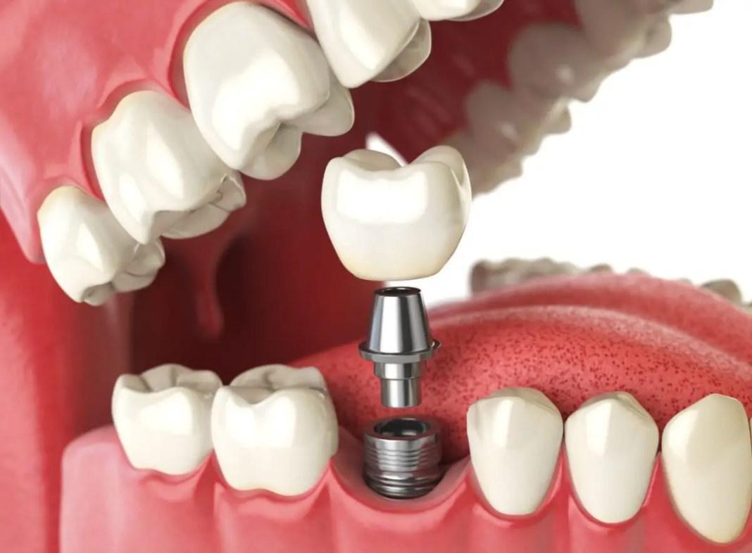 Cuanto Cuesta Un Implante Dental En Estados Unidos