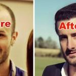 Cuanto cuesta un transplante de cabello en Estados Unidos