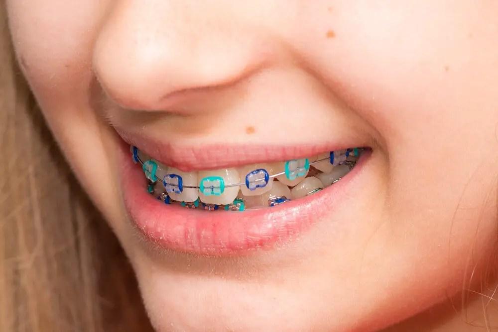 Colors Of Children's Braces