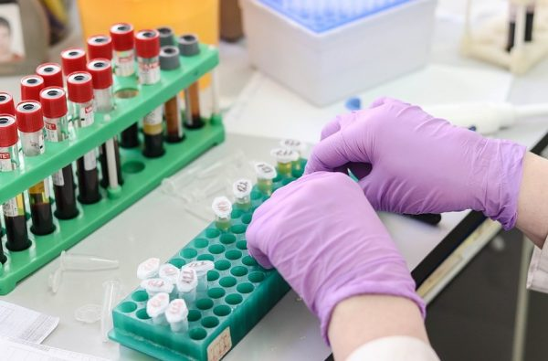 PanSeer – new blood test may be able to detect cancer four years before symptoms appear