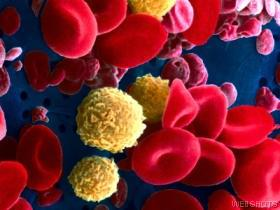 Studies: Cord Blood Works Vs. Leukemia