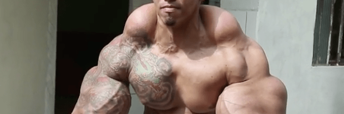 Oil & alcohol injections almost cost bodybuilder his arms - Redorbit