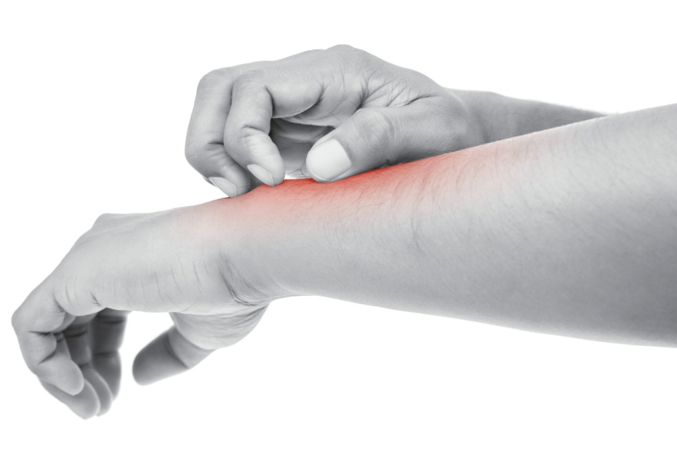 Topamax: A cure for fibromyalgia itching? - Redorbit