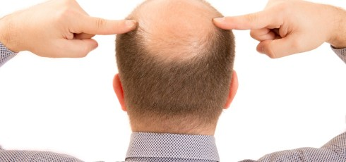 Scientists discover what causes grey hair and baldness