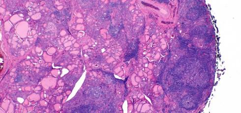 Hashimoto's Thyroiditis is a Common Autoimmune Disease